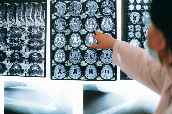 Alzheimer: come ottenere la pensione d'invalidità